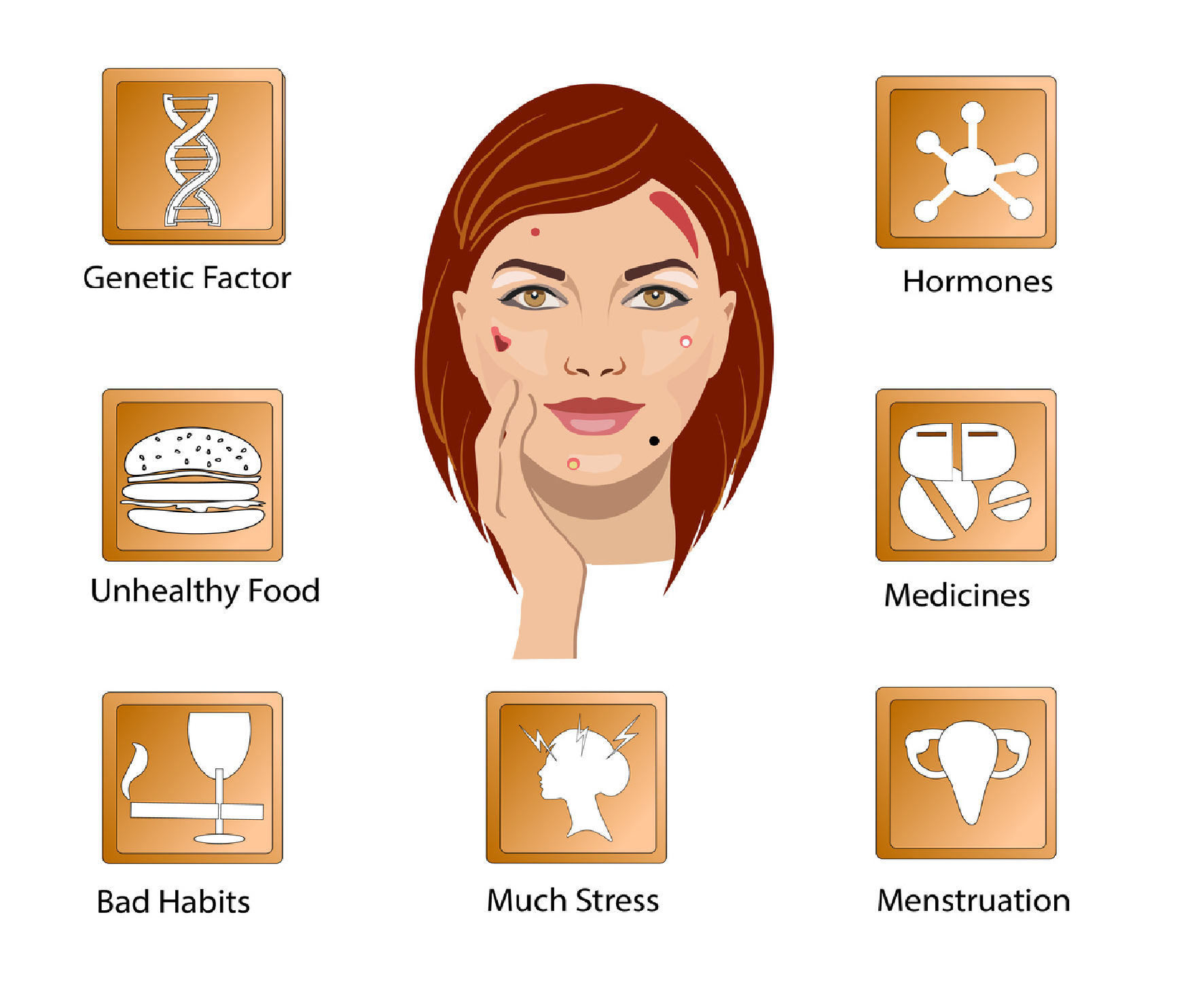 root causes for acne